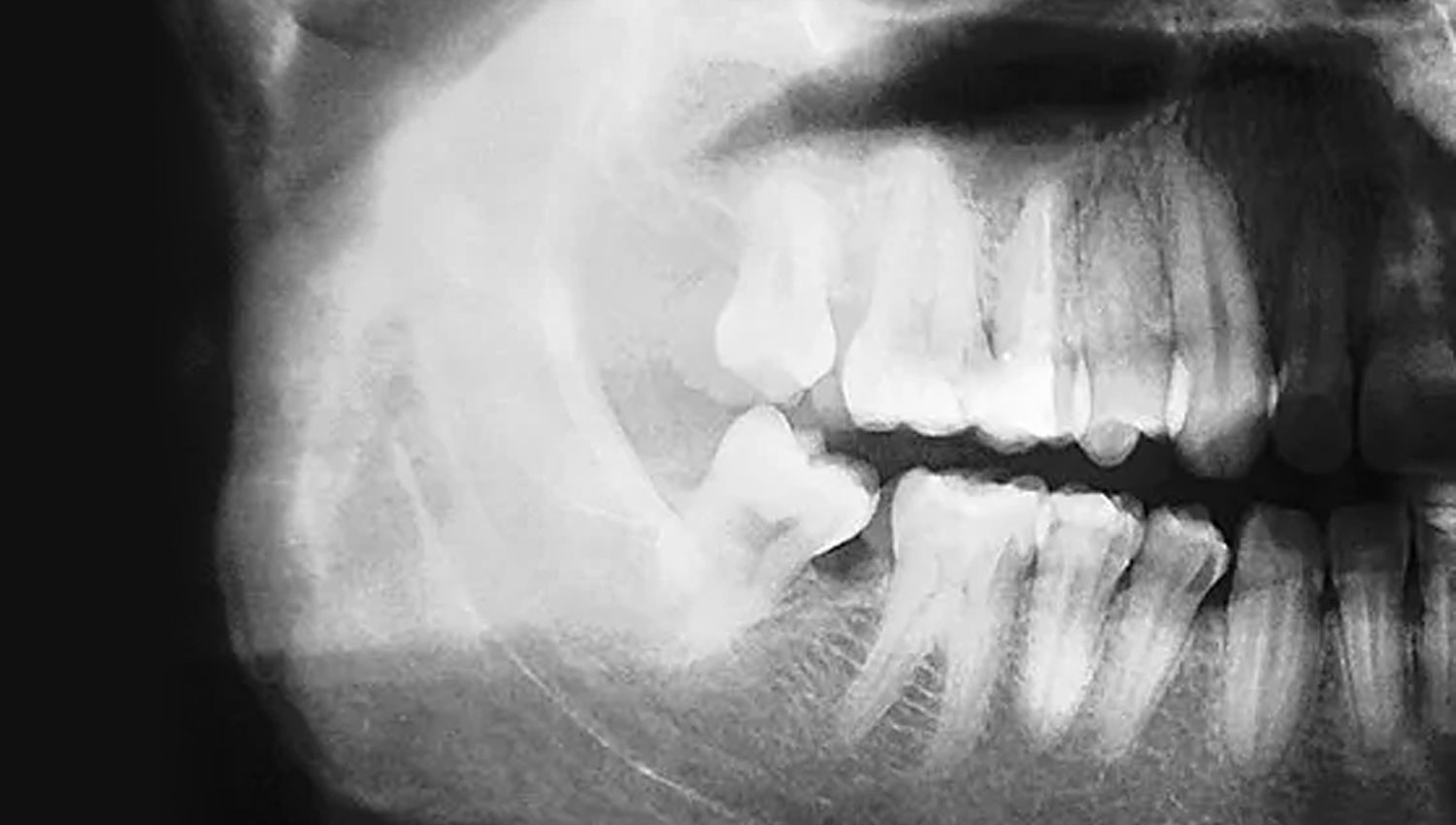 Periodontal Disease And Osteoporosis
