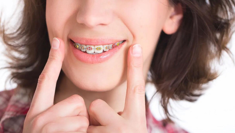 Orthodontist Near Toronto