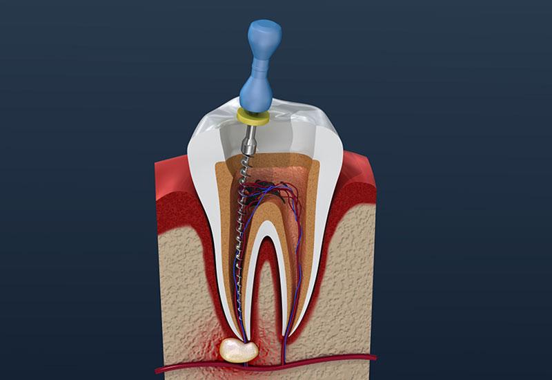 endodontics in scarborough