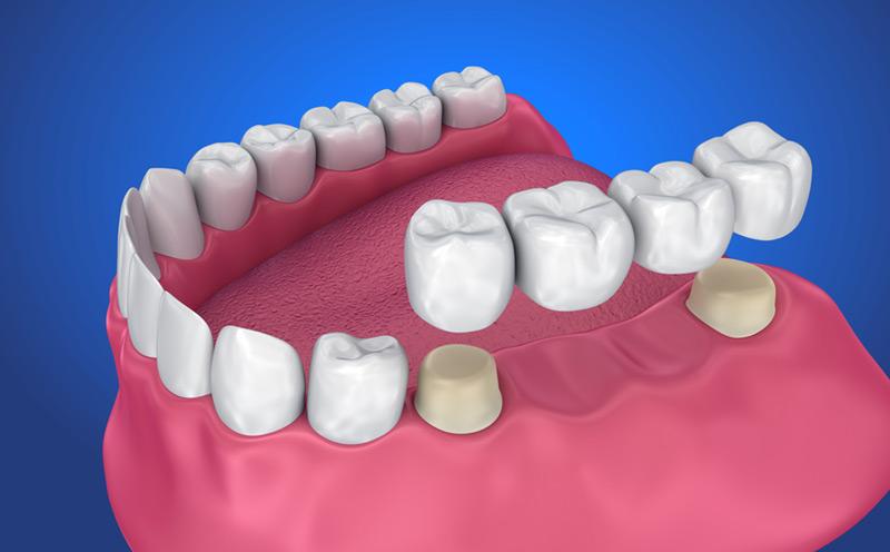 dental bridges in scarborough