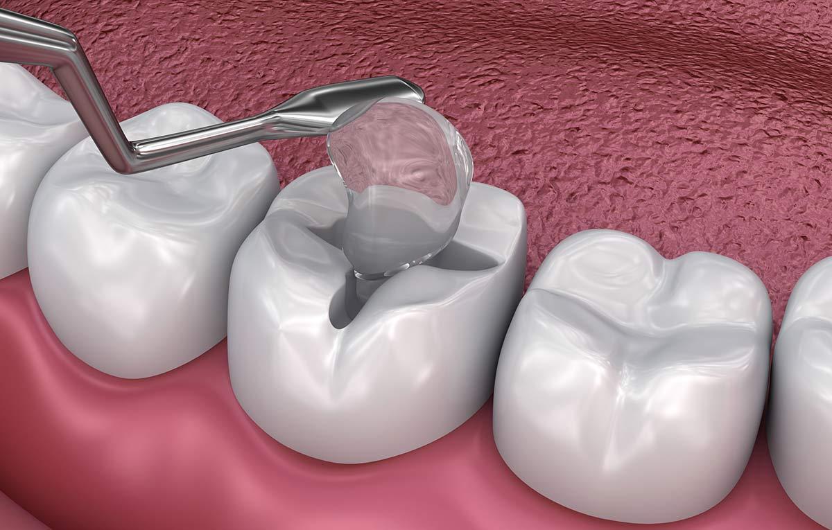 dental fillings in scarborough