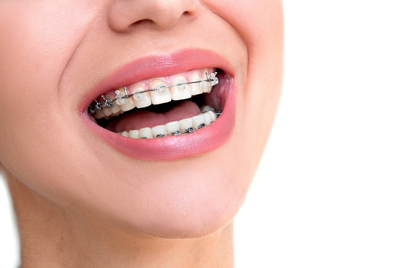 traditional braces in scarborough