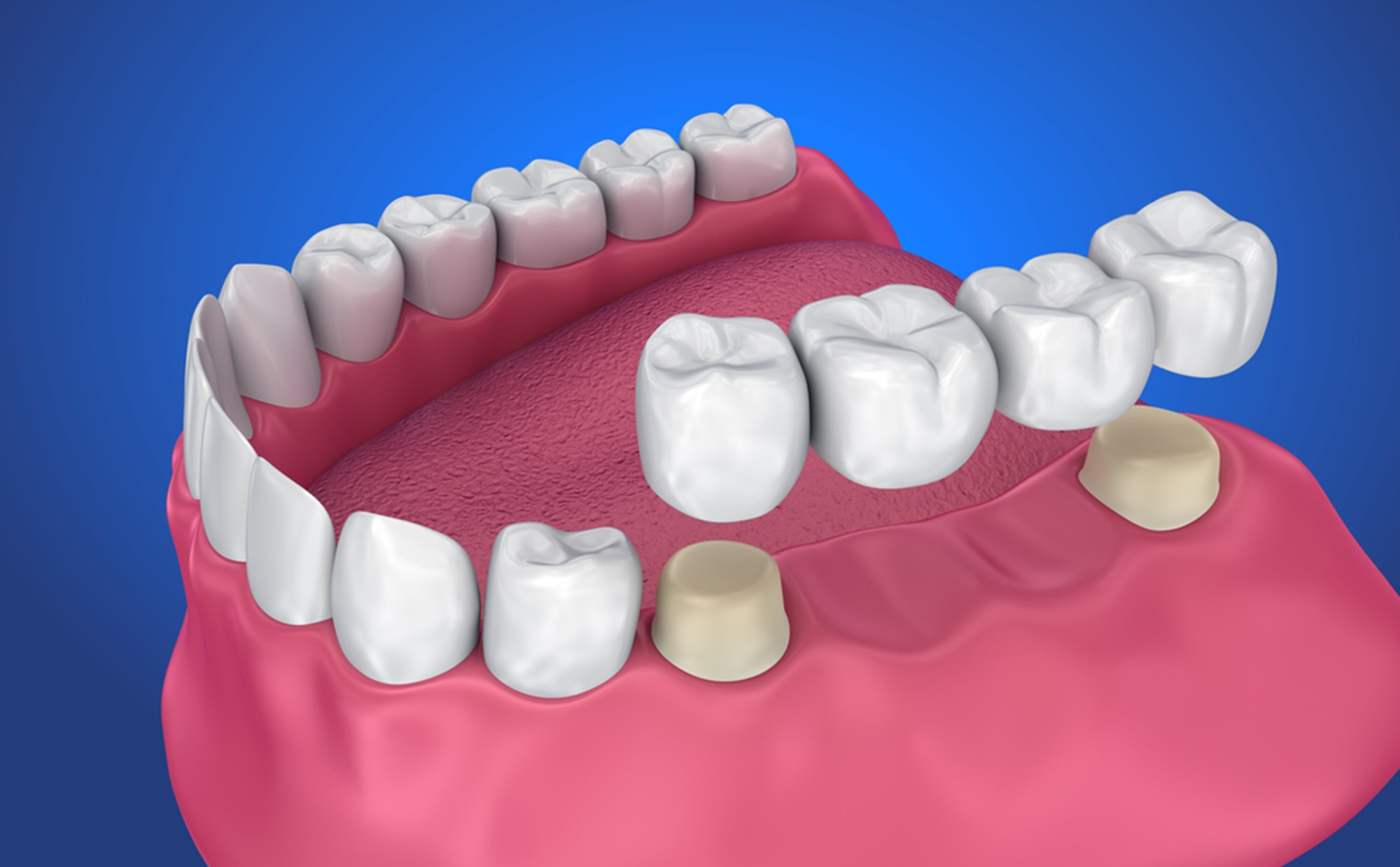 how-to-take-care-of-a-removable-dental-bridge